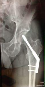 bike accident broken leg x-ray